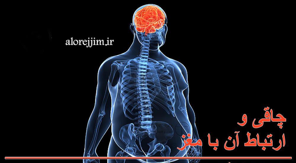 چاقی و ارتباط آن با مغز